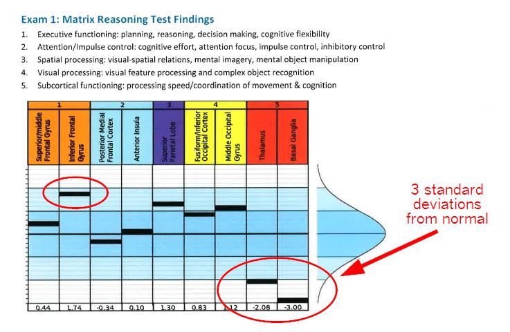 Matrix Reasoning Test Findings for Olivia