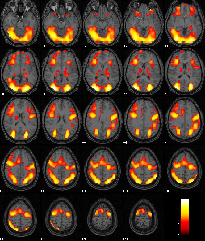 fMRI After EPIC Treatment