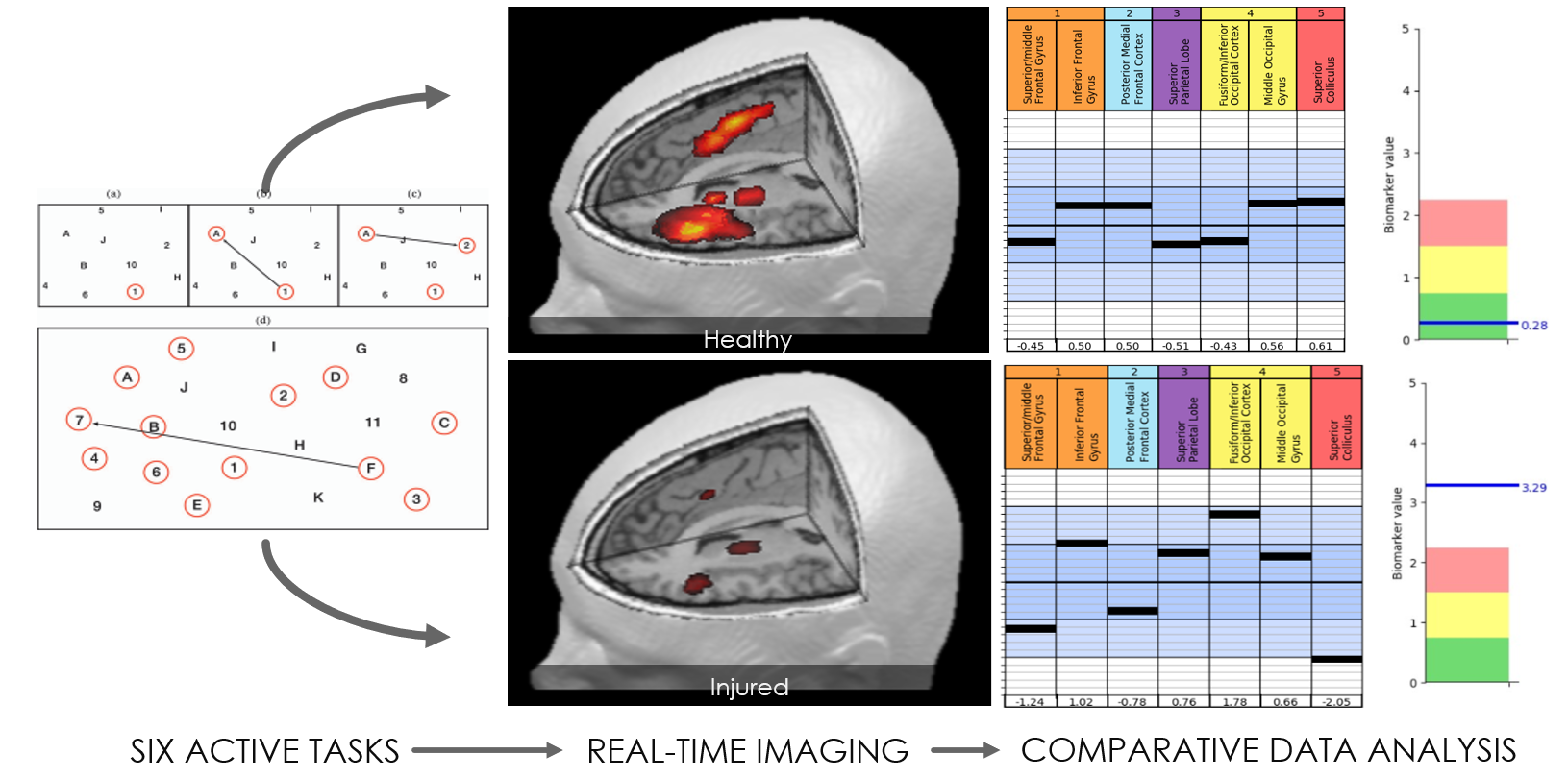 Part of treatment is close to real-time imaging of the brain.