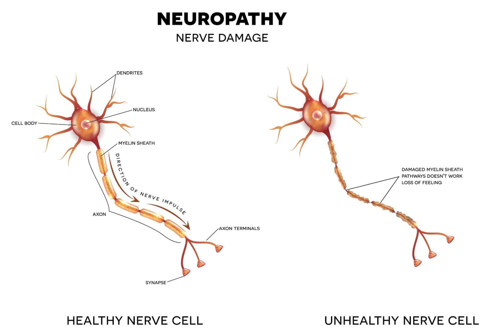 Image of a healthy nerve vs an unhealthy nerve