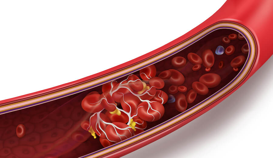 A graphic showing what a blood clot looks like in your veins.