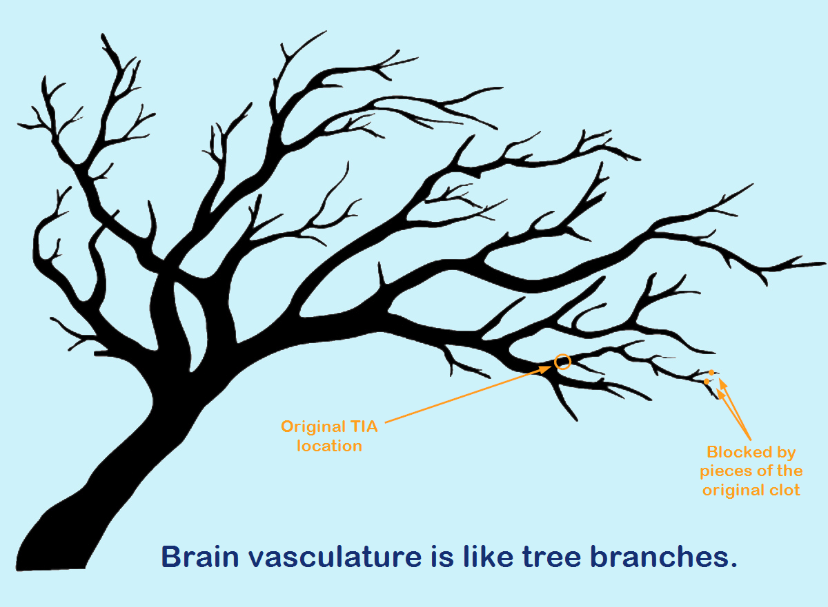 The brain vasculature is like tree branches.