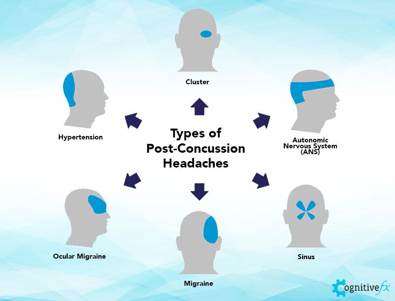These are the most common post-concussion headaches reported by our patients.