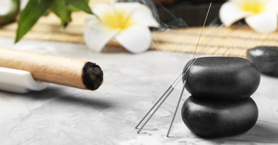 Acupuncture needles and hot stones