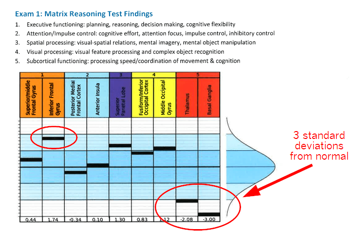 Matrix Reasoning Test Findings can tell you a lot about your brain activity.