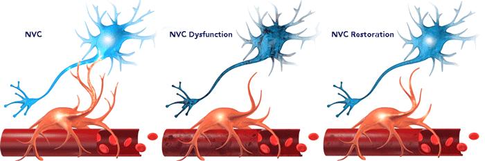 Neurovascular Couping vs NVC Dysfunction vs NVC Restoration
