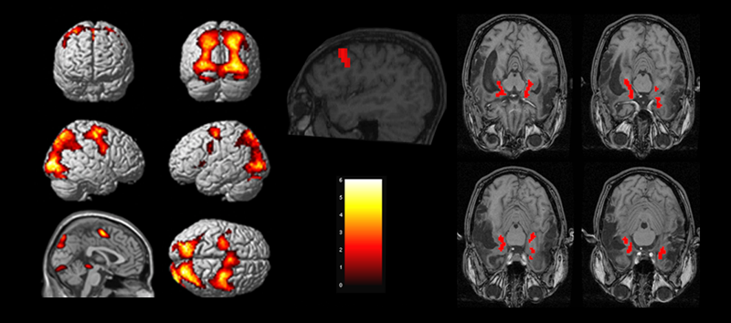 A detailed fMRI scan