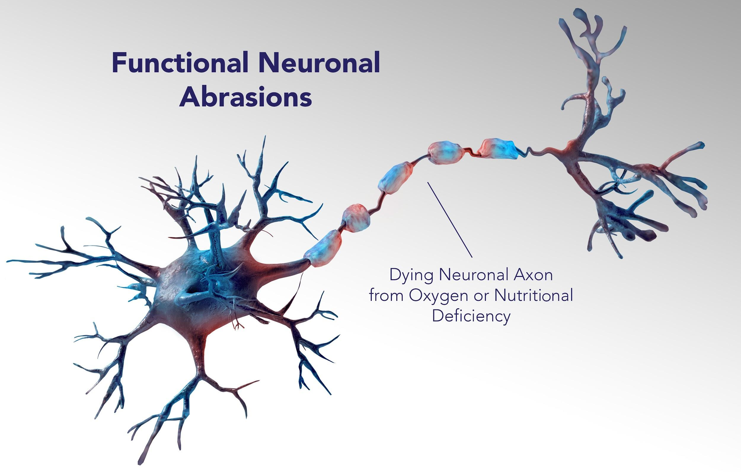 Functional Neuronal Abrasions: Dying Neuronal Axon from Oxygen or Nutritional Deficiency