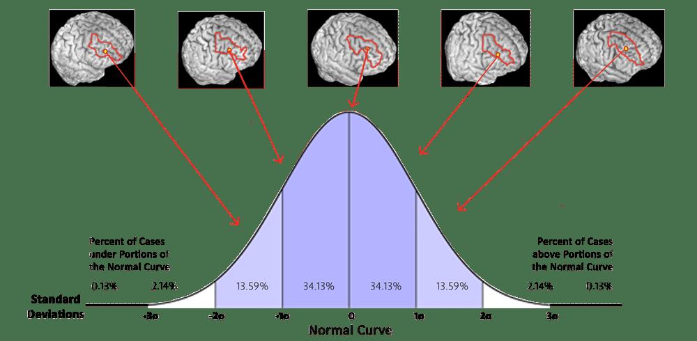 Curve Scale 2 2017