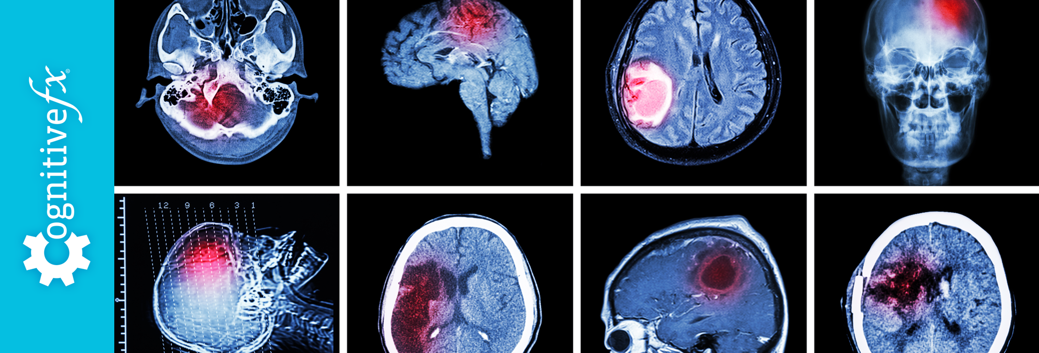 Differences Between Post-Concussion Syndrome PCS & Chronic Trauma Encephalopathy (CTE)
