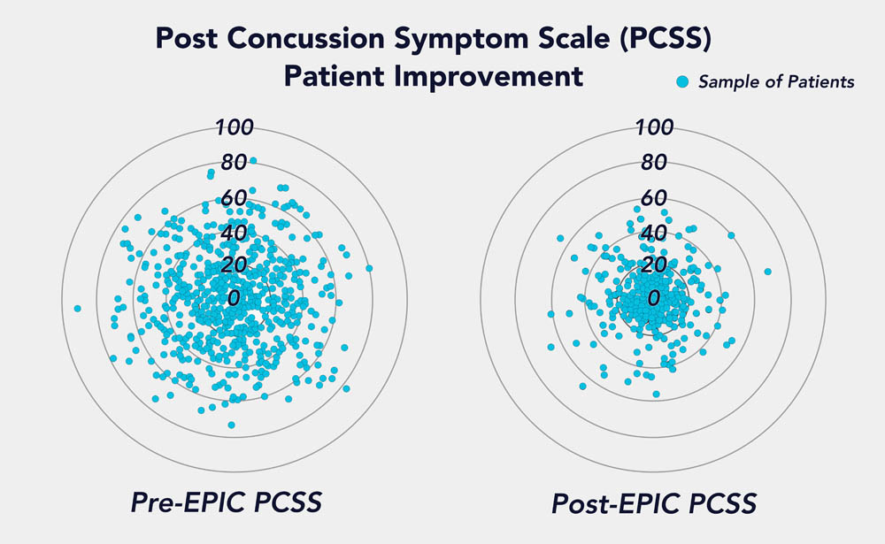 PCSS radar graph shows the overall severity of symptoms for every patient we have treated and their improvement after one week