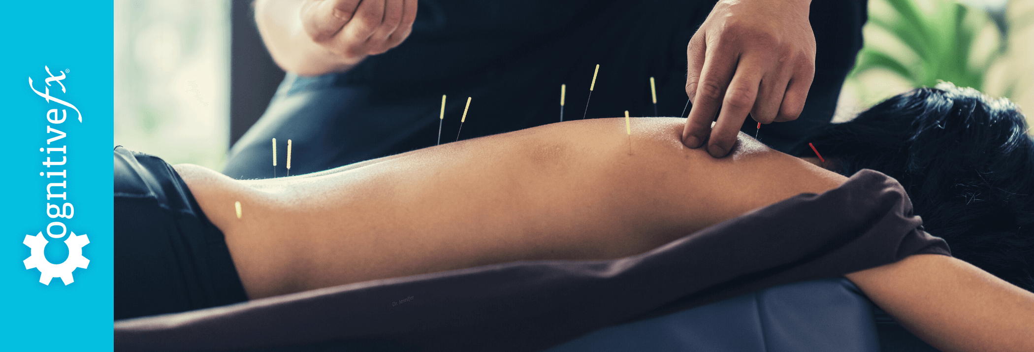 Dry Needling and Acupuncture for Concussion: Can They Relieve Your Symptoms?