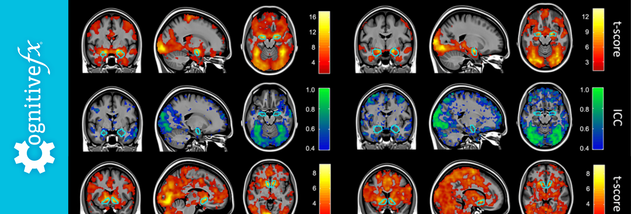 What the Duke Study on fMRI Brain Scans Means for Post-Concussion Syndrome Detection
